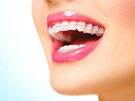 выровнять зубы брекетами