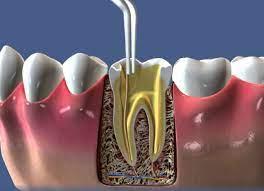 Лікування зубних каналів
